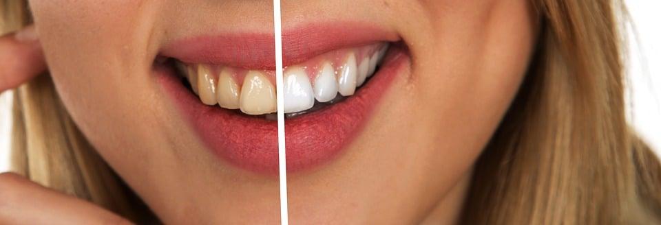 Redonner de la blancheur aux dents